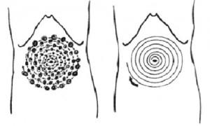 спиральный околопупочный массаж